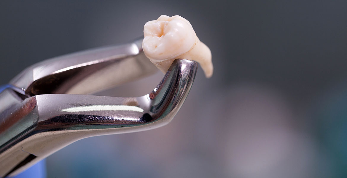 A Wisdom Tooth Removed in Brisbane